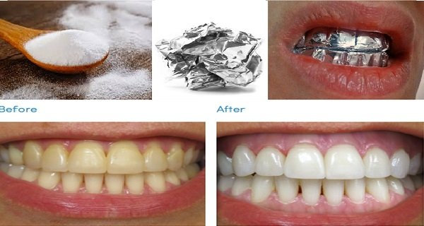 سفید کردن دندان با فویل